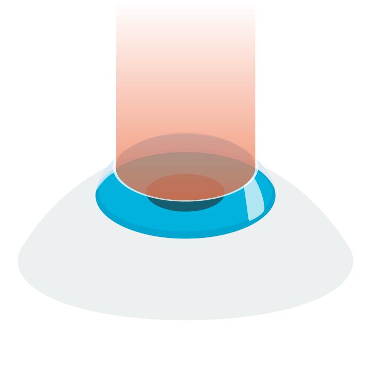 TransPRK ooglaser behandeling