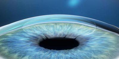 811|570|Unbekannt|Augenlaser: Neues Verfahren relex-smile Schritt 3 ...